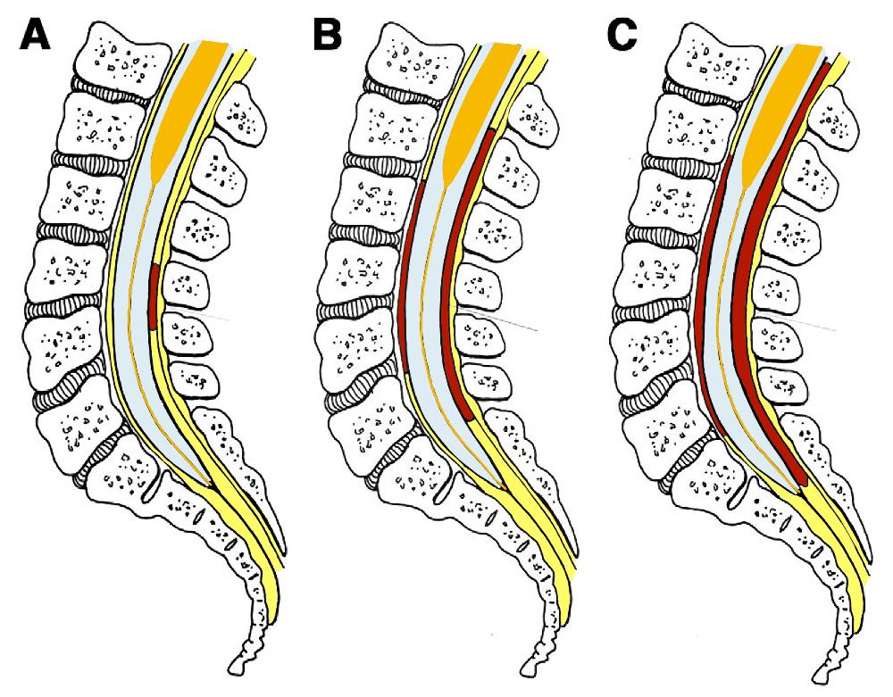 Evolución del parche hemático epidural